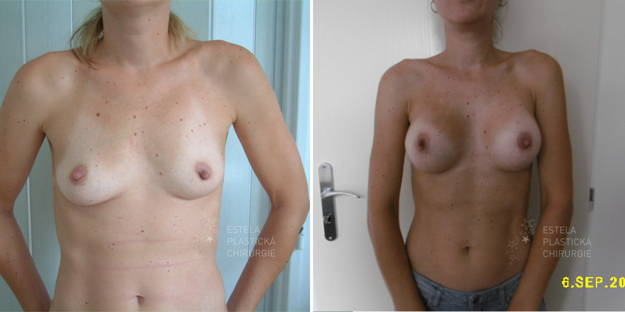 pred-po-zvetseni-prsou-1