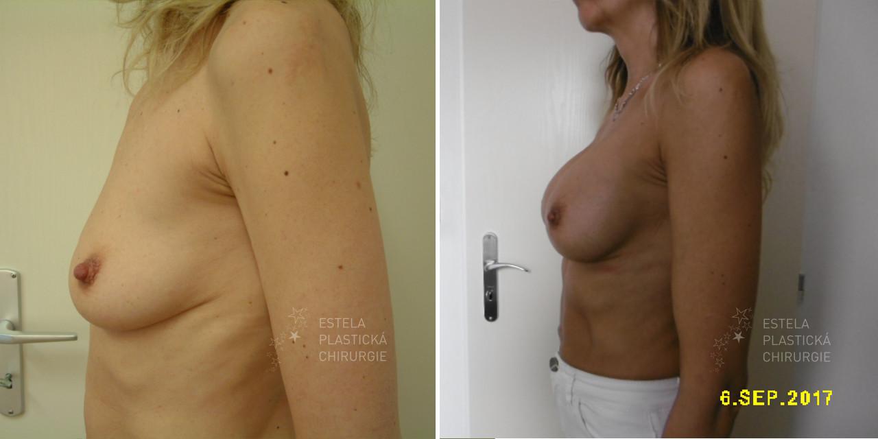 pred-po-zvetseni-prsou-2
