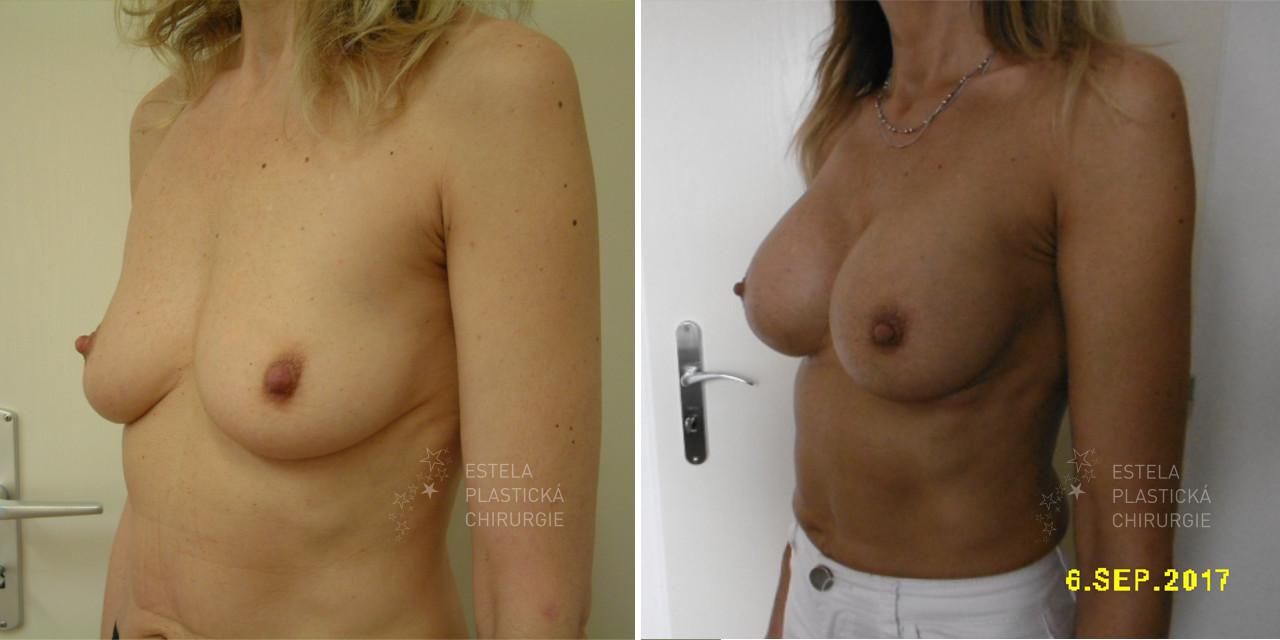 pred-po-zvetseni-prsou-3