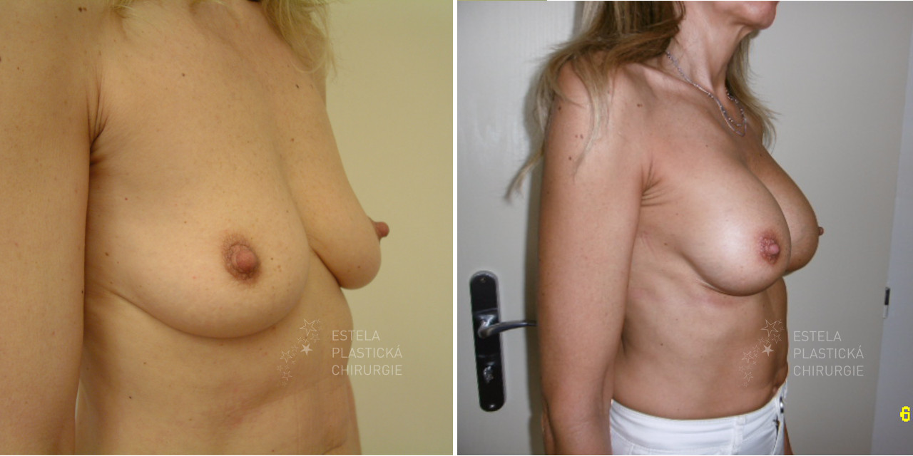 pred-po-zvetseni-prsou-4