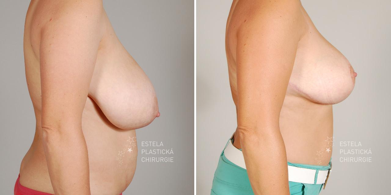 pred-po-zmenseni-prsou-4