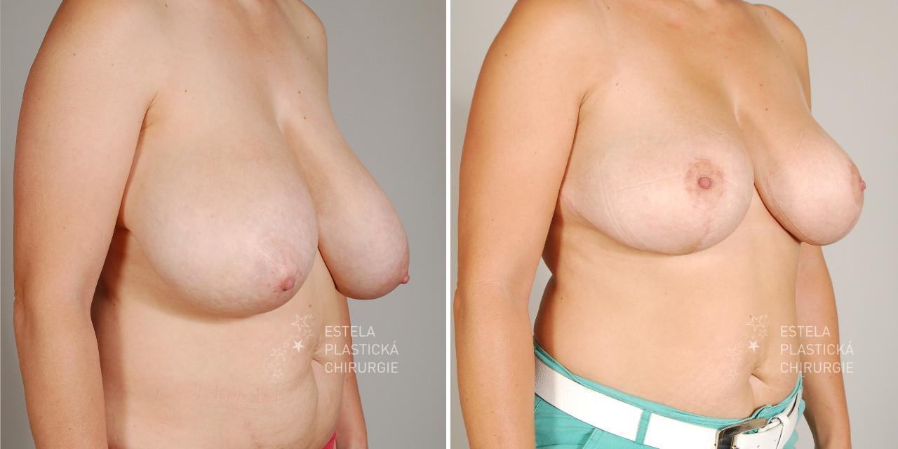 pred-po-zmenseni-prsou-5