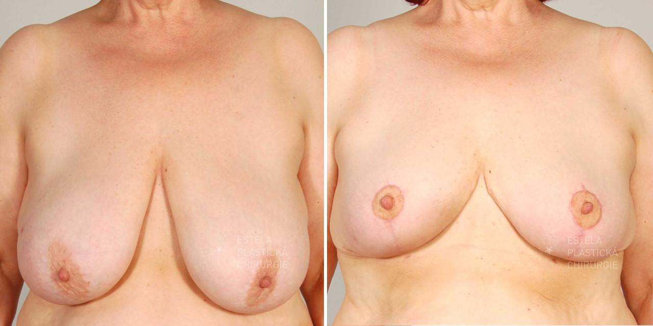 Modelace prsou před a po