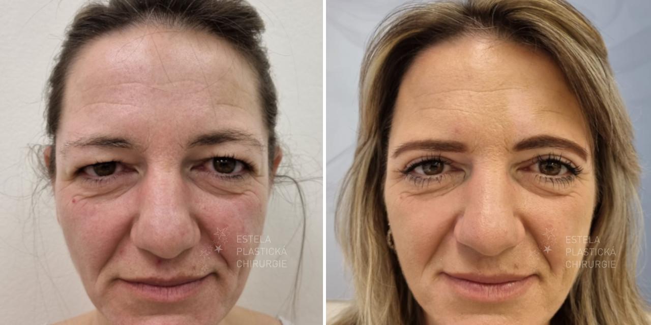 Operace víček - před a po