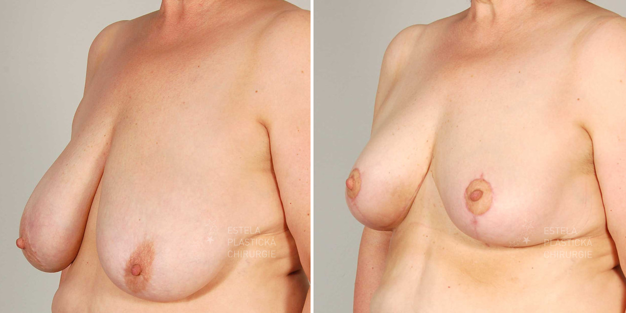 modelace prsou galerie